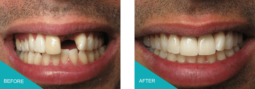 front tooth dental implant kingston