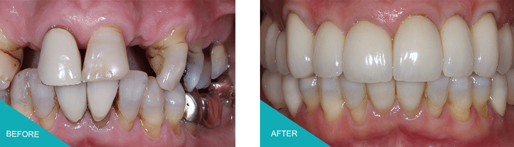 same day dental implants kingston