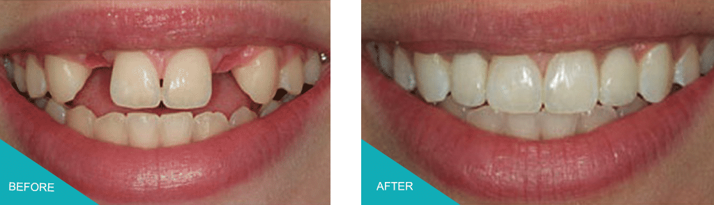 multiple dental implants kingston