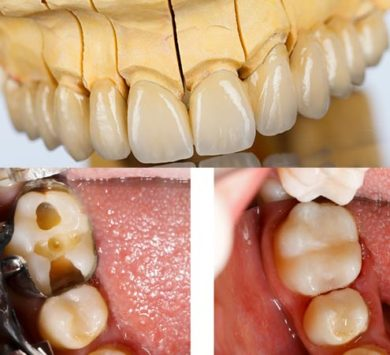 dental-crowns-kkingston-surrey-390x355