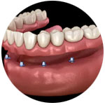 denture-implants-kingston-surrey