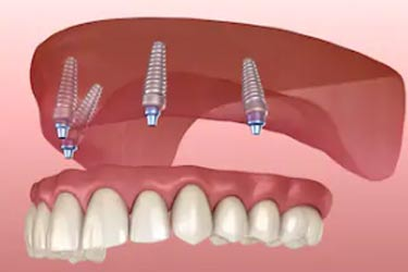 implant retained denture kingston upon thames