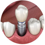 single-implant-kingston-surrey