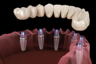 all-on-4 same day implants kingston