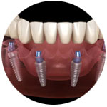teeth-in-a-day-surrey-implants