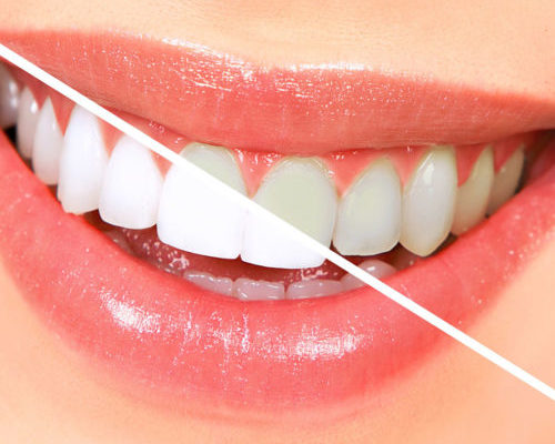 teeth-whitening-500x425-500x400