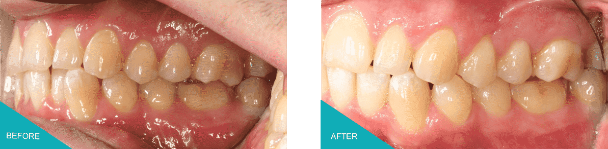Invisalign Braces in Kingston Upon Thames Before and After