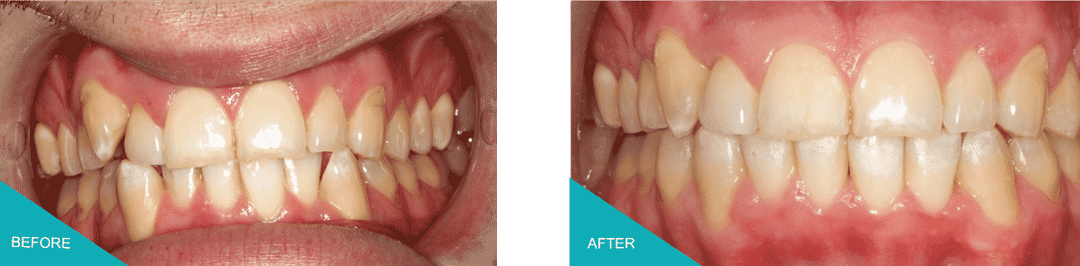Invisalign Kingston Upon Thames Before and After 1
