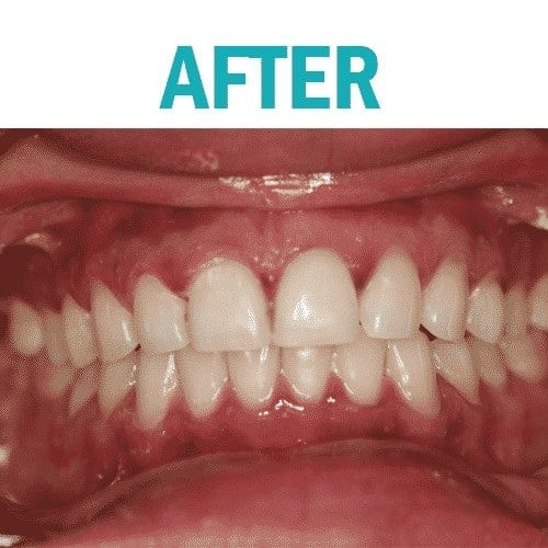 Whitening after 2