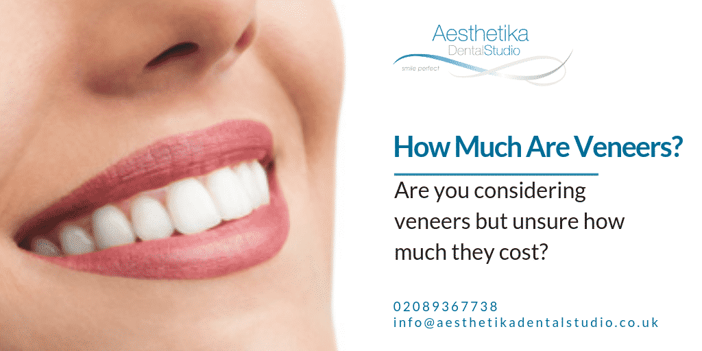 How-much-are-veneers.png