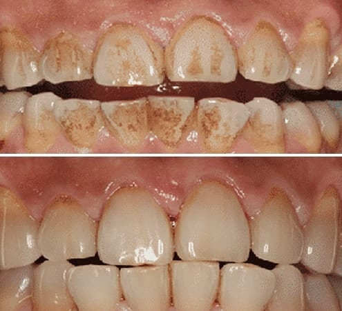 Dental Hygiene Kingston Airflow Stain Removal