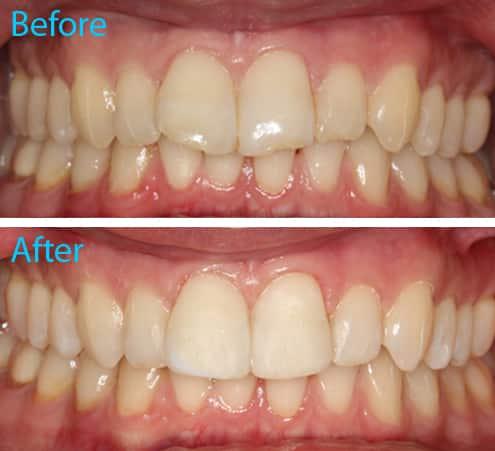Composite Dental Bonding Kingston Upon Thames Aesthetika