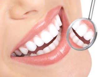 Dental Check-up, Dental Hygiene Kingston surrey