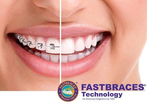 Fastbraces in Kingston Aesthetika Dental Studio