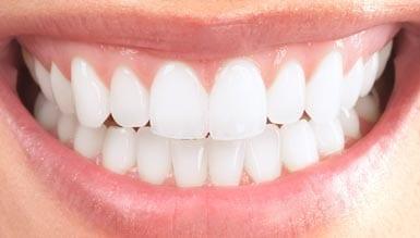 gum-contouring-2