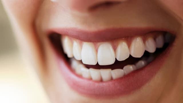 gum-contouring