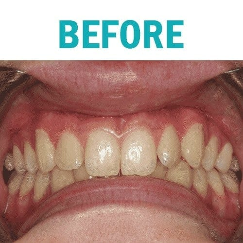 Teeth Whitening Kingston Before