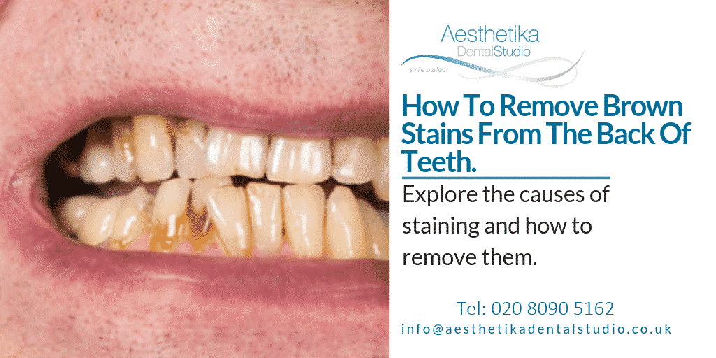 How-to-remove-brown-stains-from-the-back-of-teeth-1.png