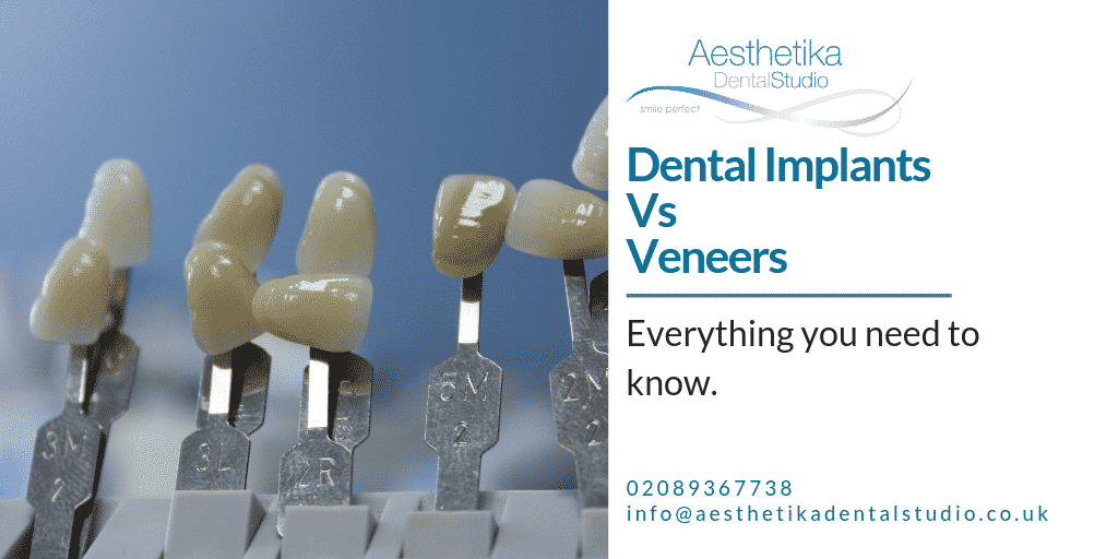 Dental-implants-vs-Veneers.-Everything-you-need-to-know.png