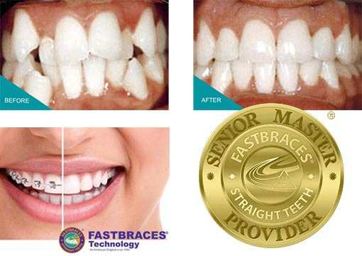 Fastbraces Kingston Surrey