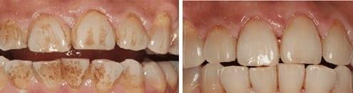 Dental hygiene in kingston