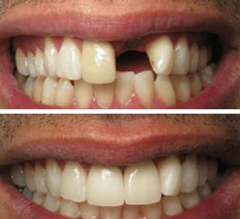 Dental Implants Kingston Surrey Aesthetika