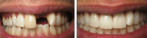 Dental Implants Kingston Upon Thames