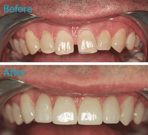 Porcelain Dental Veneers Kingston