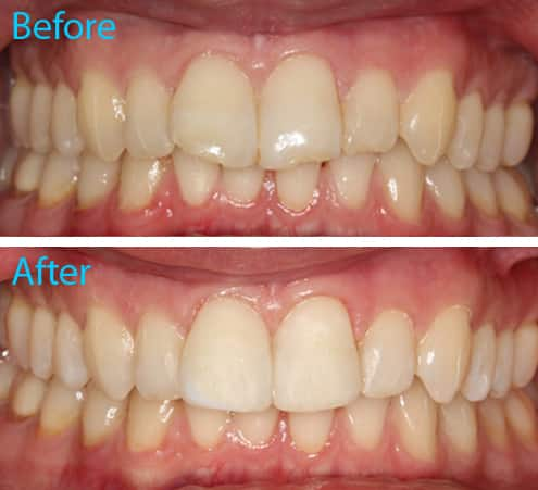 Composite Dental Bonding Kingston Upon Thames Aesthetika