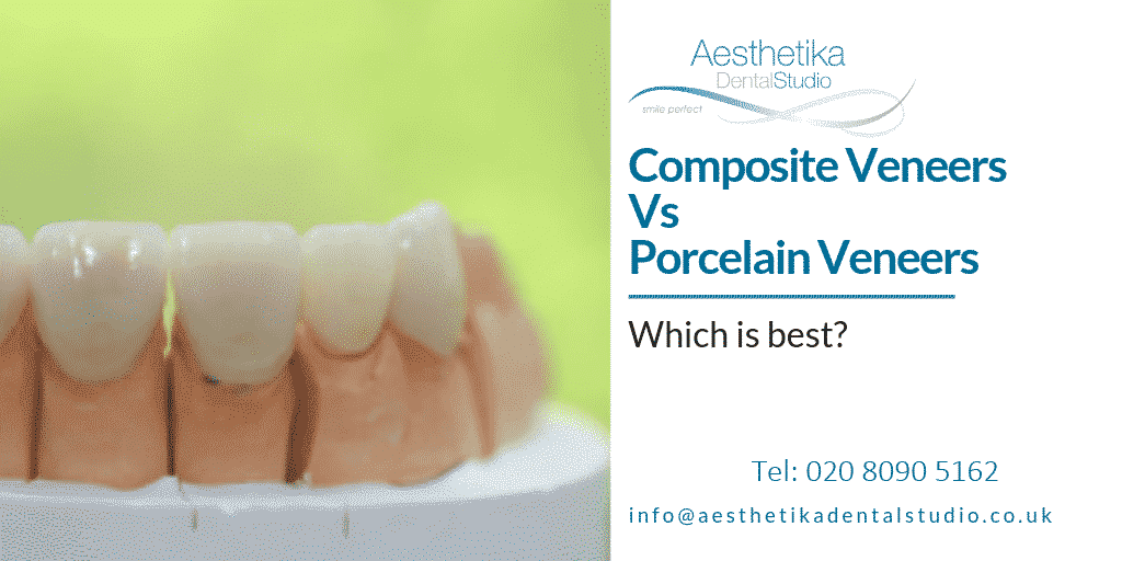 Composite-Veneers-vs-Porcelain-Veneers-which-is-best.png