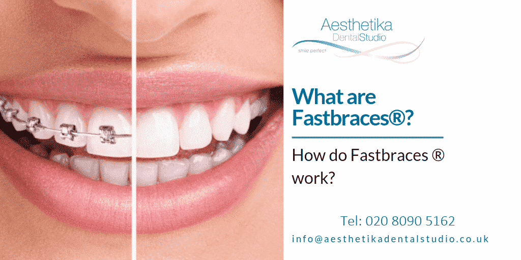 What-are-fastbraces.png