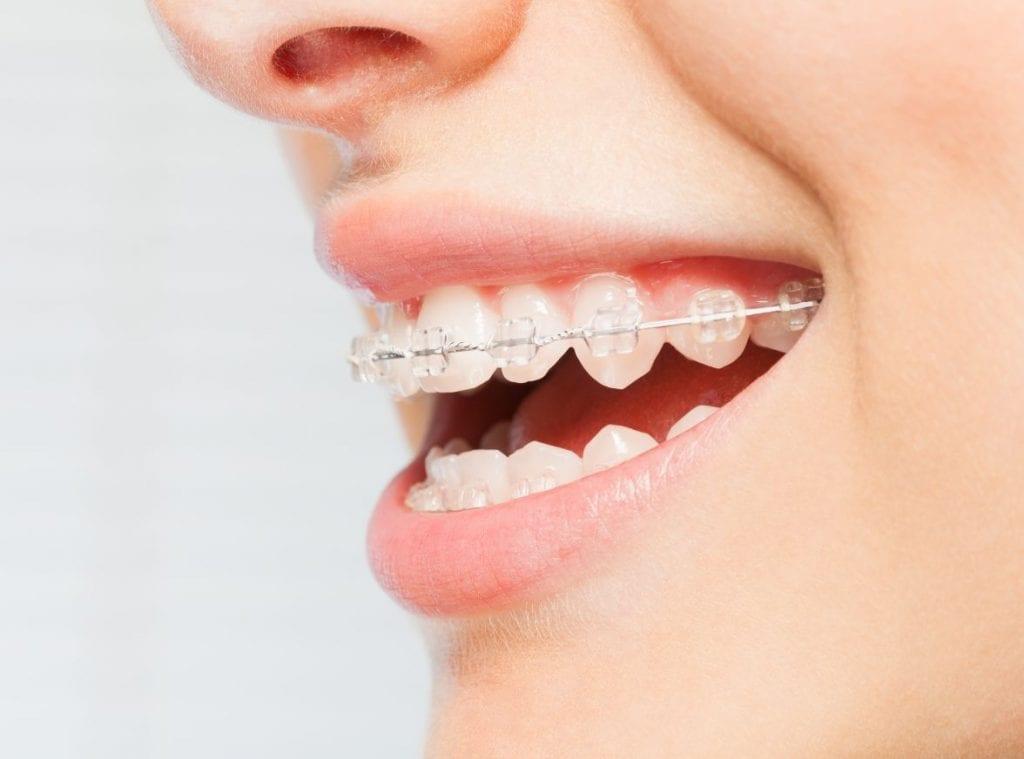 Clear braces Kingston