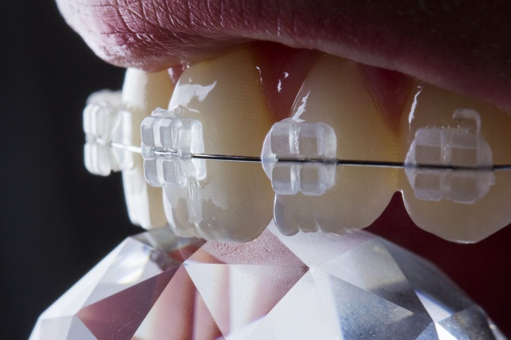Clear Braces Kingston upon Thames