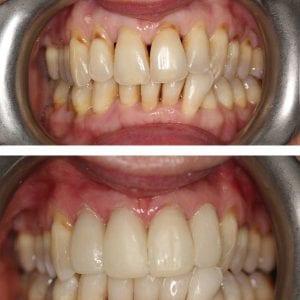 Dental Veneers Kingston