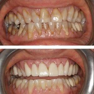 Dental Veneers in Kingston upon Thames
