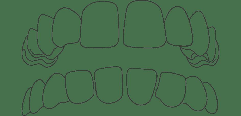 Invisalign for Gapped Teeth in Kingston