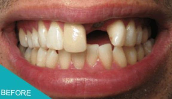 Missing Teeth Replaced Kingston Aesthetika Dental