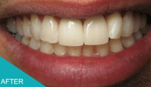 Missing Teeth Solutions With Kingston Aesthetika Dental