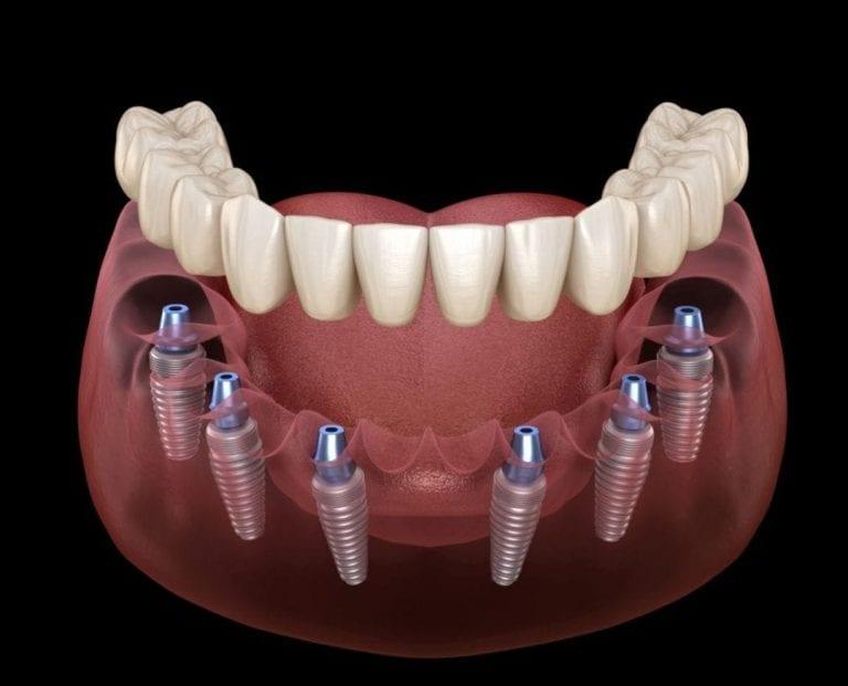 Same-day Teeth with Dental Implants Kingston