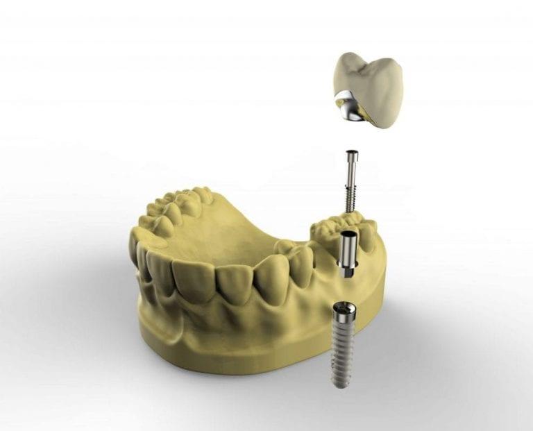Single Dental Implants Kingston upon Thames