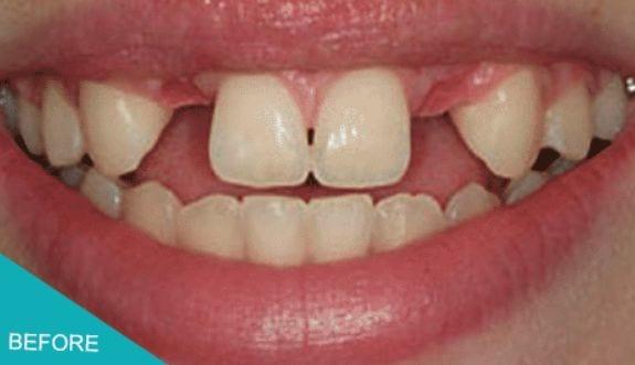 Teeth Replacement in Kingston