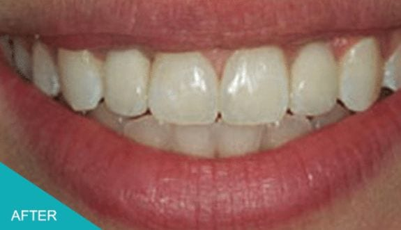 Tooth Replaced With Dental Implant