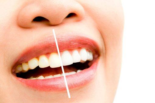 Cosmetic Dentistry Kingston